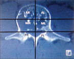 Изображение - Дискоидный мениск коленного сустава vertebral_hemangiomas_1_145